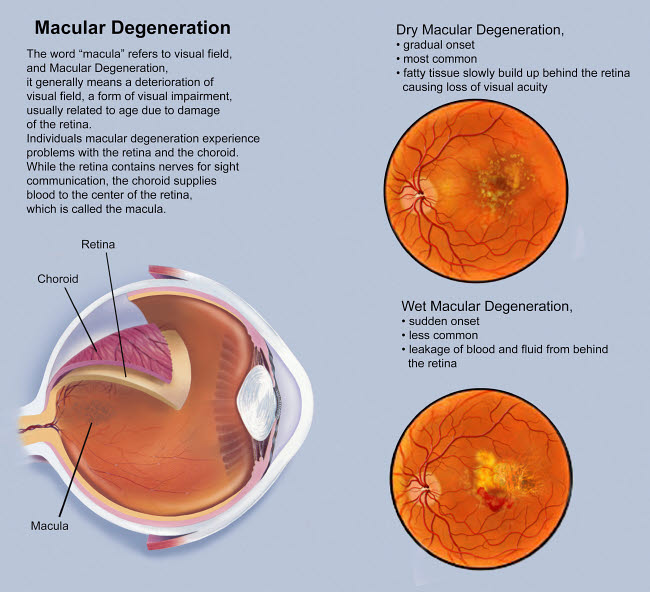 Macular Degeneration Caused By Viagra